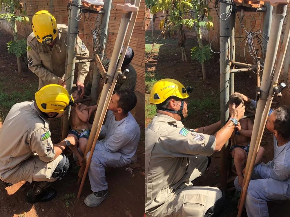 Imagem de Menino de 2 anos é resgatado após ficar preso pela cabeça em torre metálica