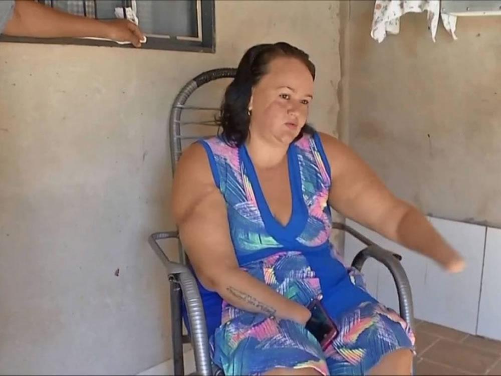 Imagem de Ex-marido é condenado a 15 anos de prisão por decepar as duas mãos da mulher